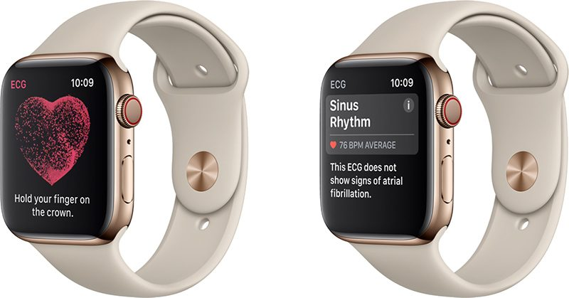 EKG Apple Watch Series 4