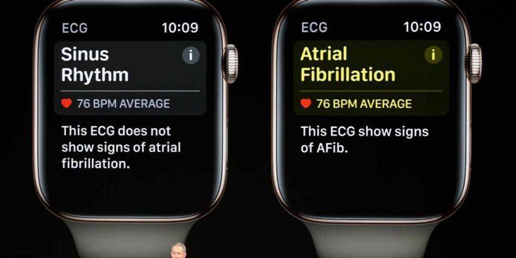 žaloba Apple Watch